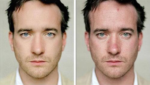 09-celebridades-antes-e-depois